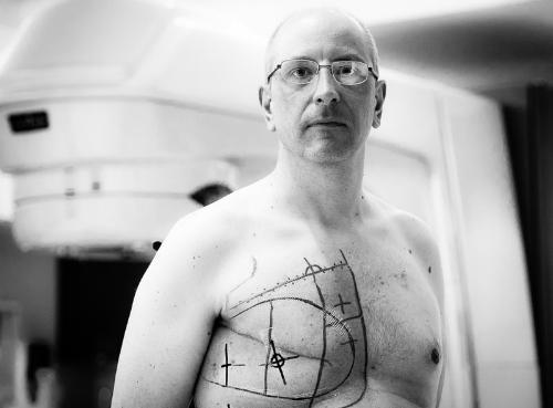 Đàn ông dễ chết nếu bị ung thư vú bạn có biết?