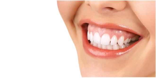 Cười hở nướu nguyên nhân và phương pháp điều trị
