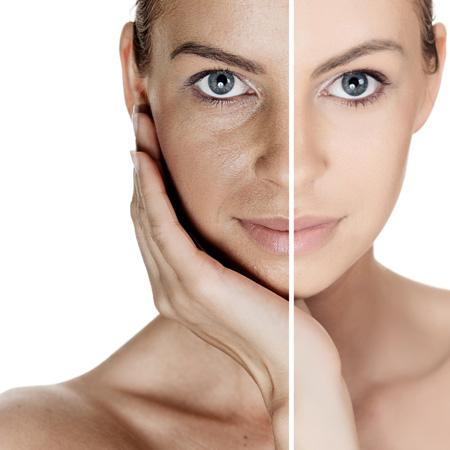 Căng da và làm thon gọn khuôn mặt xinh xắn