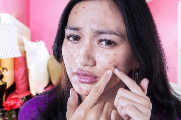 Collagen không rõ nguồn gốc làm da bạn xấu đi