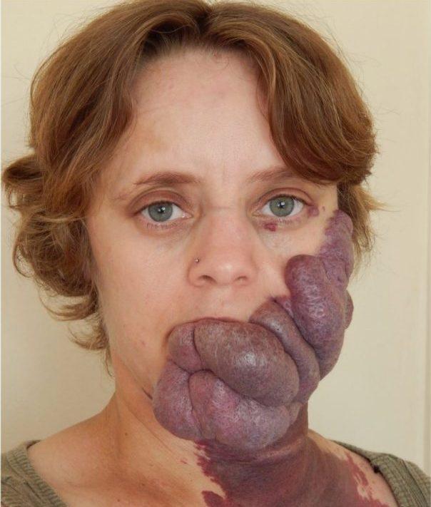 Khốn khổ vì khối u ám ảnh hàng chục năm của người phụ nữ