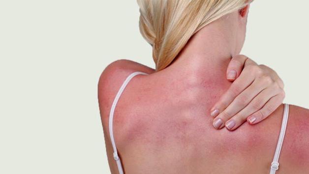 Ngộ độc ánh mặt trời có nguy hiểm?