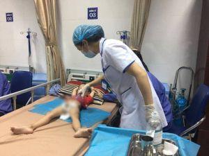Gần 80 bé trai bị sùi mào gà ở Hưng Yên