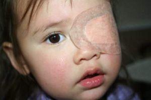 Những điều cần biết về bệnh nhược thị ở trẻ em