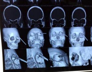 Cứu sống bệnh nhân bị đoạn sắt đâm xuyên mắt ở Yên Bái