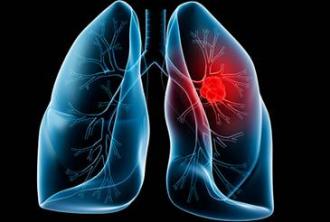 Bệnh nhân có thêm lựa chọn chữa trị ung thư phổi tại Việt Nam