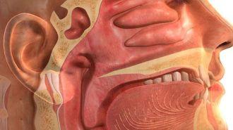 Ung thư vòm họng là gì và cách phòng tránh?