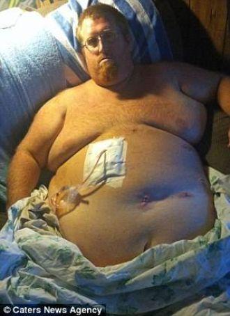 Giảm 130kg, một ông bố lột xác đến kinh ngạc