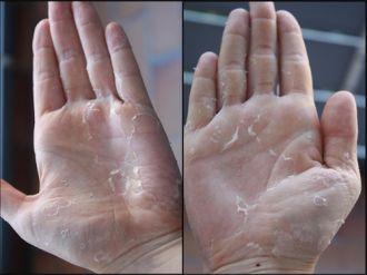 Những cách khắc phục bong tróc da tay