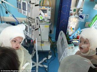 Hai bé trai song sinh liền đầu lần đầu được nhìn thấy nhau
