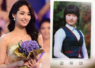 Làm sao có chiếc mũi đẹp như hoa hậu Hàn?